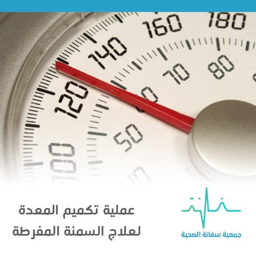 حالة إنسانية: عملية التكميم لمريضة السمنة المفرطة وضيق التنفس